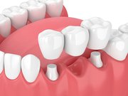 What Are the Advantages Of Dental Bridges? | Skymark Smile Centre Blog