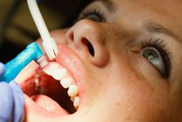 Why Is It Important To Get Teeth Cleaned?